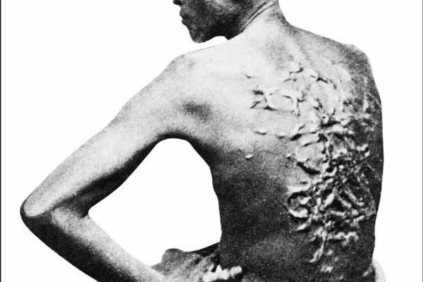 Scarred-Slave